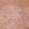fotovananenud nahk