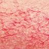 väiksed veresooned näol ja ninal